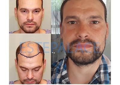 לפני ואחרי השתלת שיער