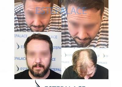 """השתלת שיער ד""""ר נגיאן אקבס"""