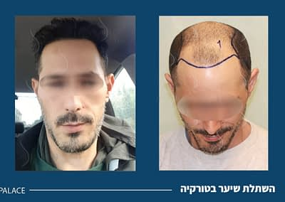 before and after hair transplant