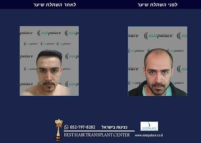 תמונה לפני ואחרי השתלה